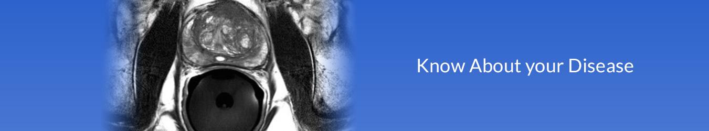 Prostate Treatment in Delhi